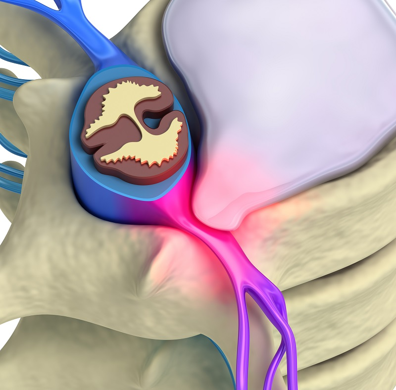 prolapse-of-intervertebral-disc-closeup