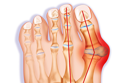 493ss_getty_rm_bunion_illustration-4050665