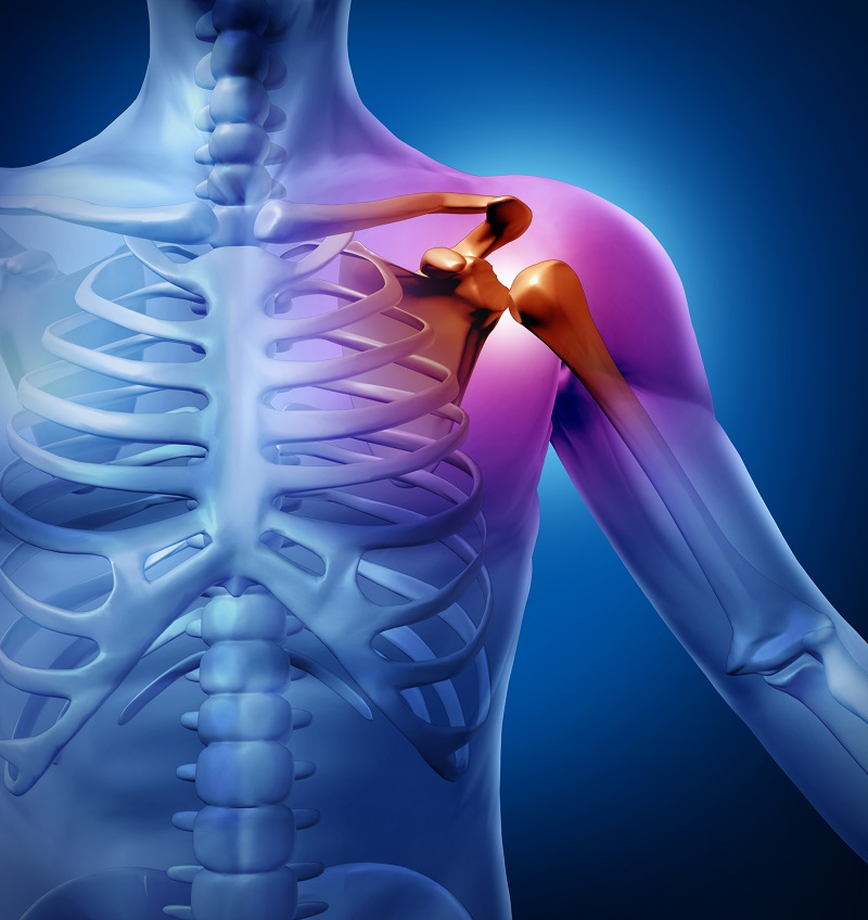 human-shoulder-pain