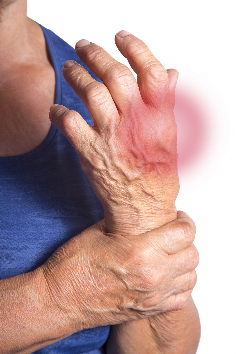 hand-deformed-from-rheumatoid-arthritis