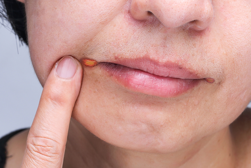 angular-cheilitis-is-a-type-of-common-inflammation-of-the-lips