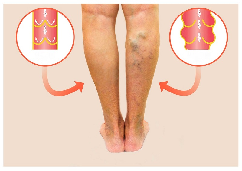 varicose-veins-on-a-female-senior-leg